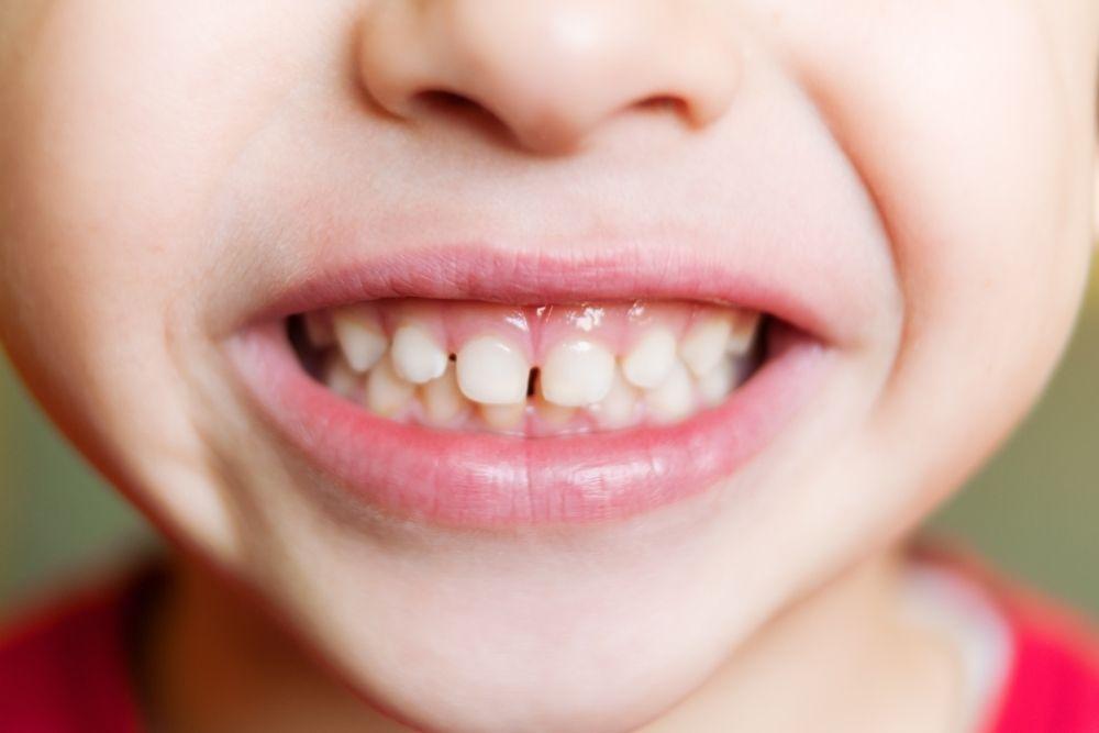 Bruxism (Teeth grinding) in children